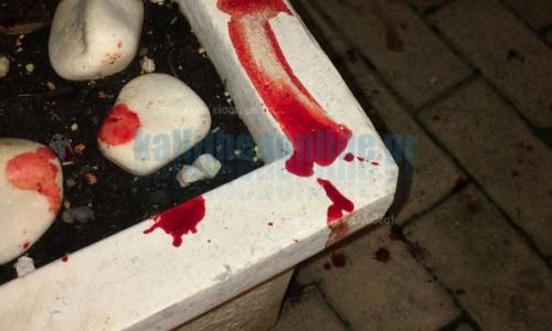 Συμπλοκή αλλοδαπών στην Καλλιθέα – Ένας τραυματίας από επίθεση με μαχαίρι